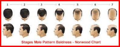 chart hair loss treatment picture 10