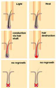 ipl hair removal picture 19
