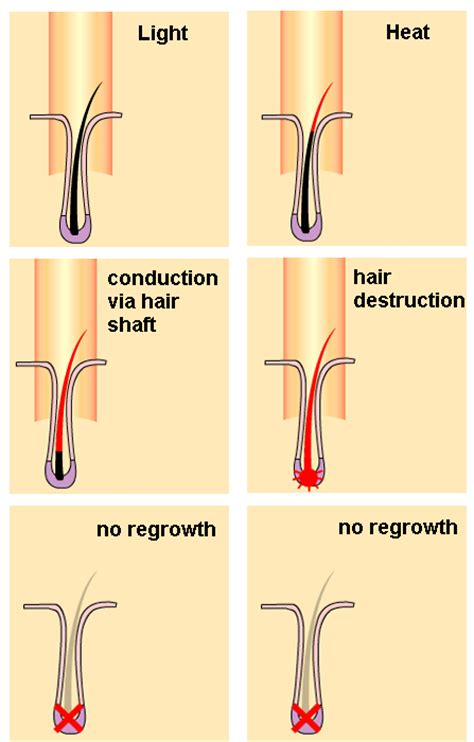 about hair removal picture 11