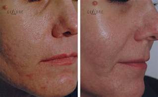 delaware acne scarring picture 7