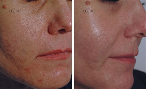 acne doctors in torrance picture 18