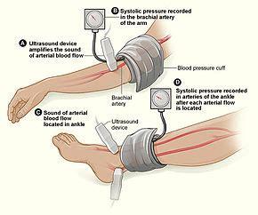 Blood pressure measurement devices picture 9