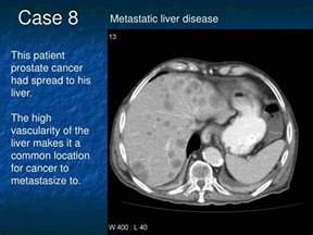 Metastisis of prostate cancer to the lliver picture 1