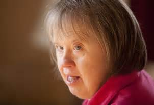 aging in down syndrome picture 1