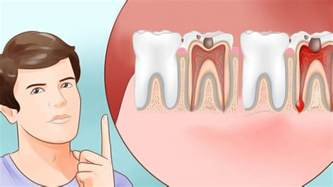 teeth pain picture 3