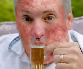 alcoholic, face acne and liver damage? picture 1