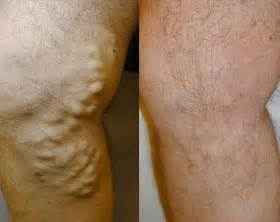 hair removal an hemorrhoids picture 7