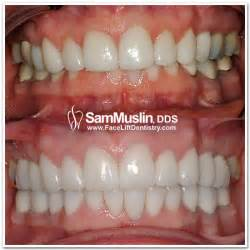correcting teeth from overbite picture 2