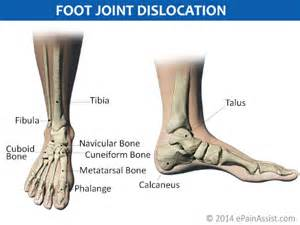 ankle joint recurrent subluxation dislocation picture 6