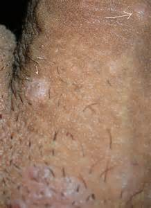 genital wart on underside of penis picture 10