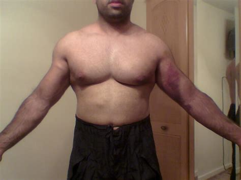 do torn attachments of the pectoralis muscle need picture 11