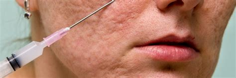 glycolic acid acne picture 9