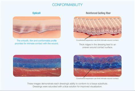 skin wound care picture 11