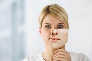 prednisone acne picture 3