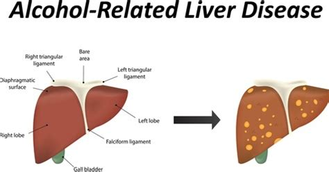 how to repair cirrhosis of the liver picture 8