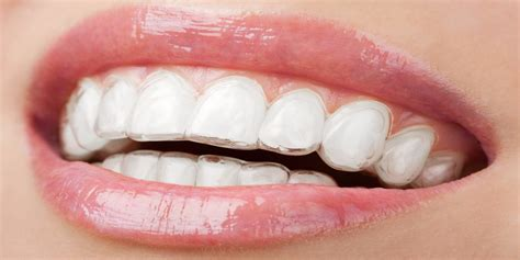 whitening strips to whiten lips picture 7