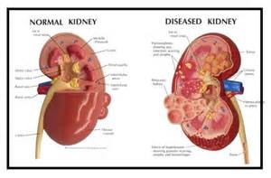 bladder pressure with renal disease picture 6