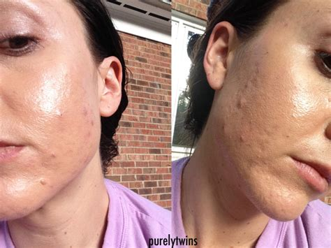 aldactone helping acne picture 10