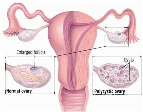 can pcos lead to a fatty liver picture 4