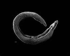 schistosomiasis cleanse picture 10