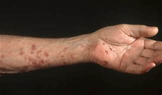 is herpes zoster contagious picture 11