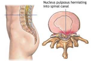 testosterone therapy for herniated disc picture 10