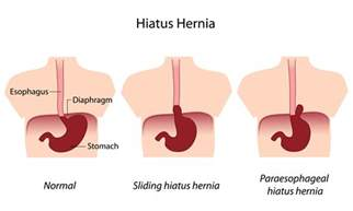hiatal hernia can accelerated aging picture 10