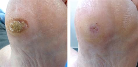 wart removal picture 2