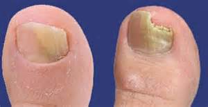 toe nails yellow from smoking picture 13