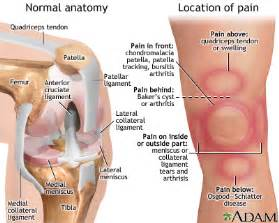 severe joint pain sudden onset picture 3