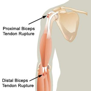 bicep muscle pain picture 13