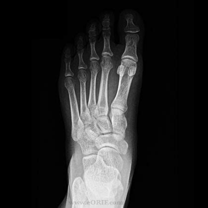 lisfranc joint picture 10