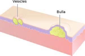 buni skin disease medication picture 2