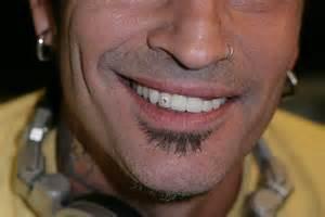 diamond teeth picture 1
