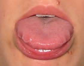 does garlic help white spot on tongue picture 11