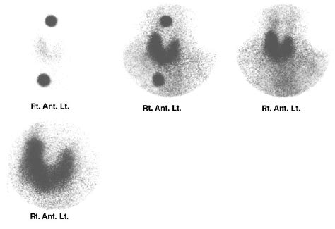 abnormal thyroid scan and uptake picture 15