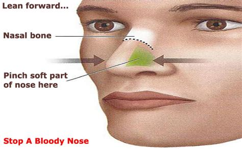 Causes of blood pressure increase and nose bleeds picture 14