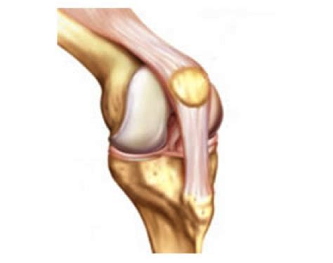 arthroscopy of knee joint picture 1