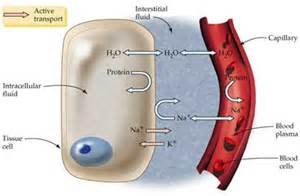 intersial cysis of the bladder picture 19