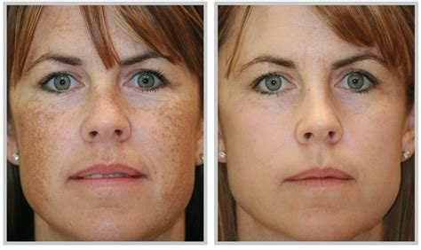 microdermabrasion for acne scars picture 5