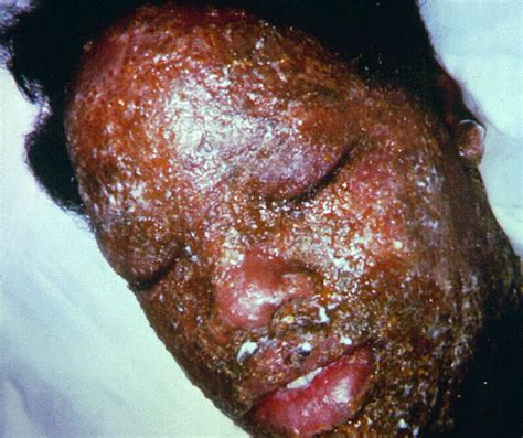 herpes support picture 9