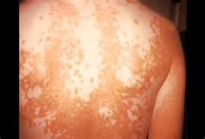 skin disease vitiligo picture 2