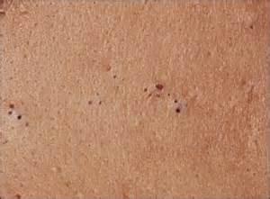 acne vs blackheads picture 10