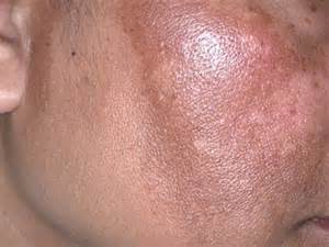 liver disease, patchy red spots picture 18