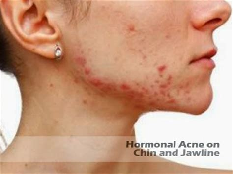 chin jawline acne picture 5