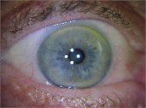 arcus senilis treatment homeopathic picture 10