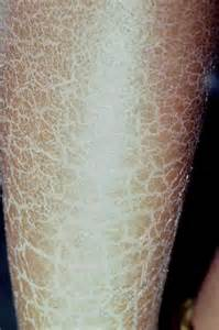 dry skin on legs picture 5