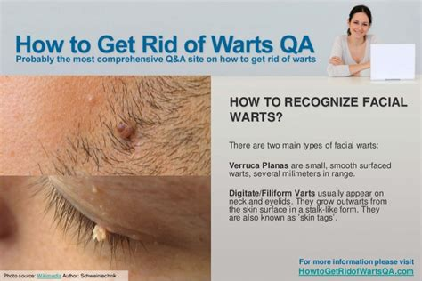 the beat way to treat warts inside of picture 4