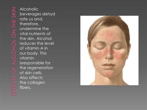 alcohol and skin picture 1
