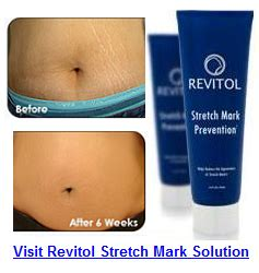 strech mark removal shown on oprah picture 10